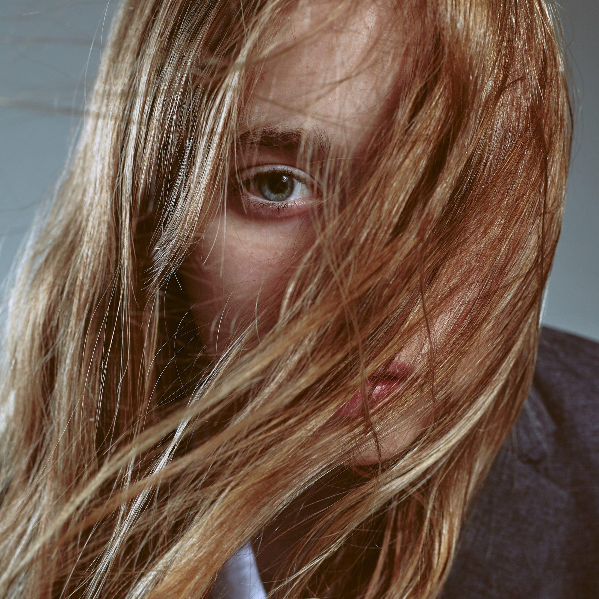 orsaker till håravfall så stoppar du det