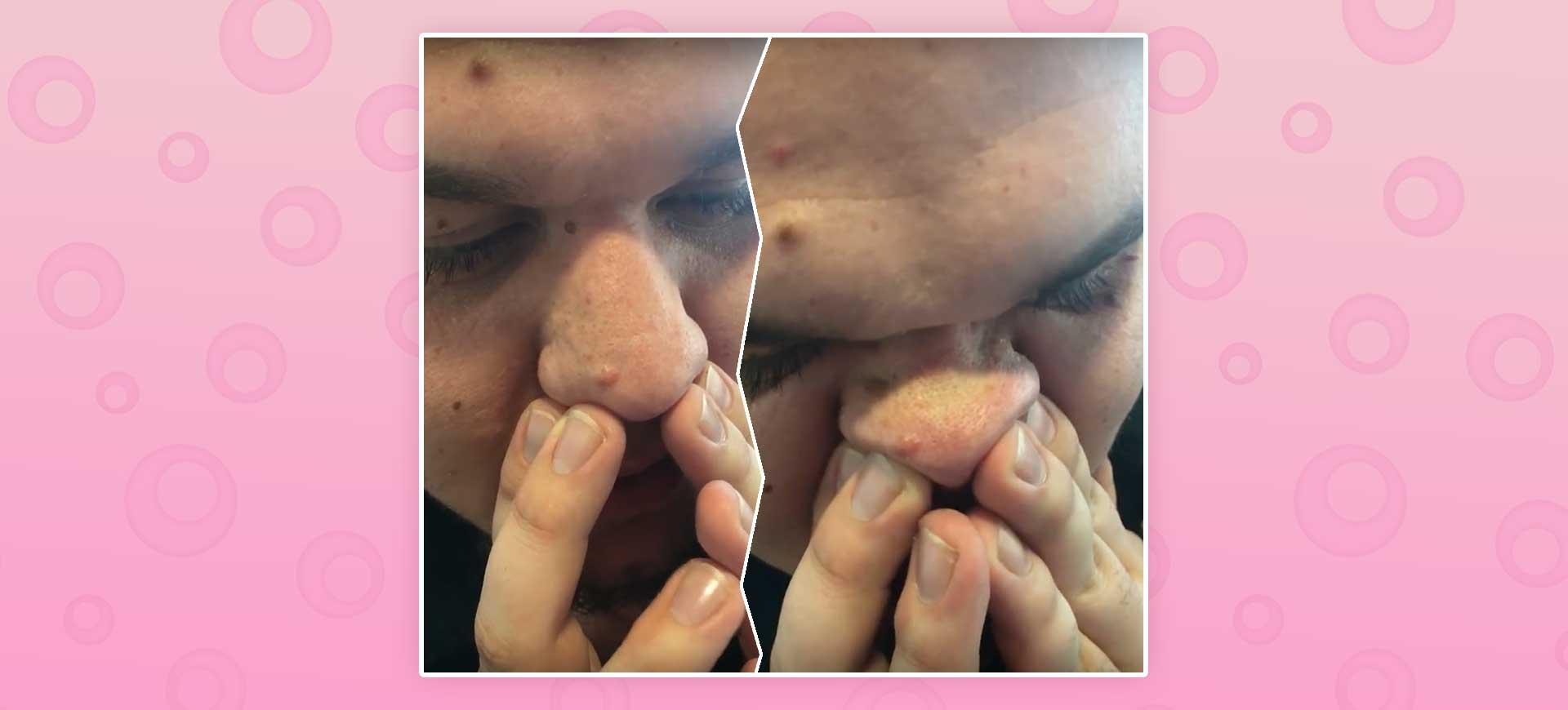 klämma porer på näsan