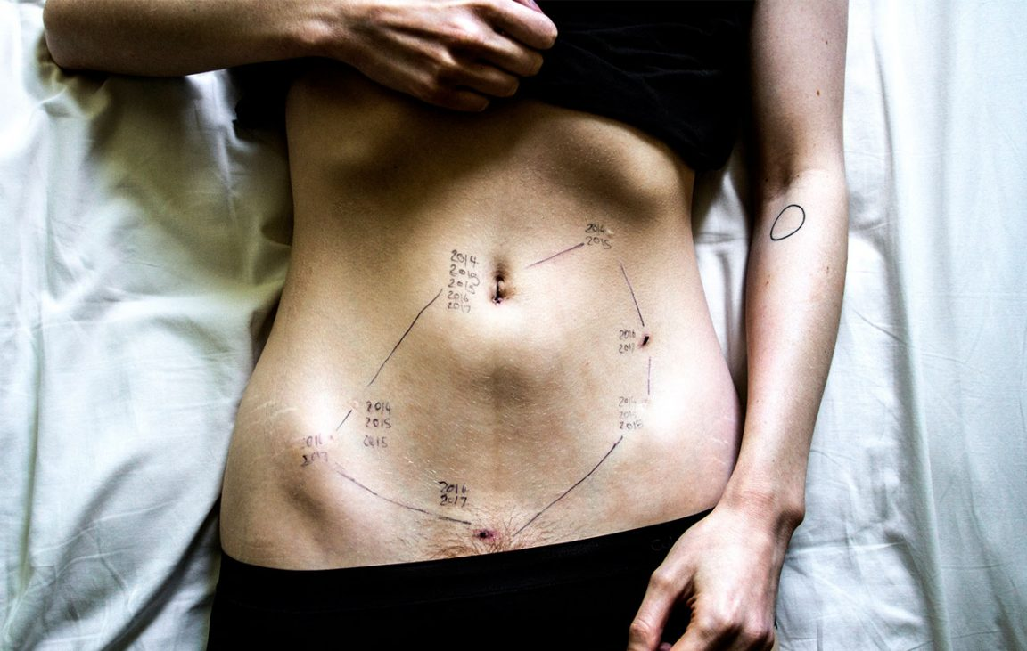 så ser endometrios ut ärr