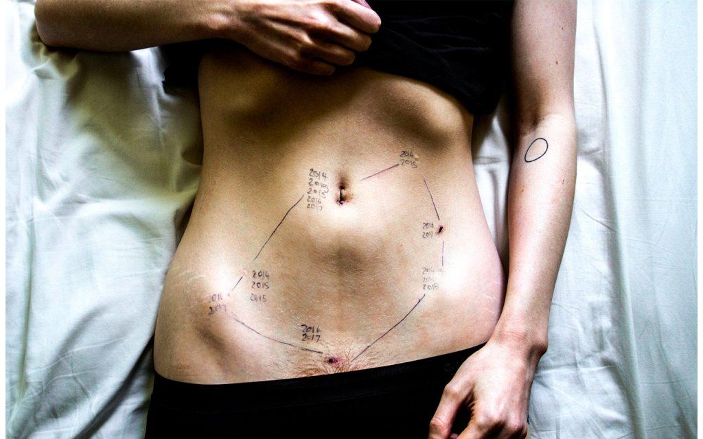 Endometriosärr efter en operation.